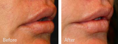 Dr Randal Haworth DAO Lip Lift